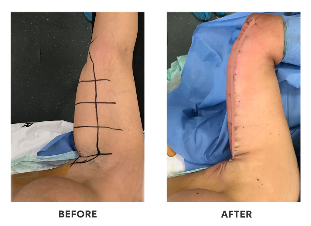Before and after an armlift in Tijuana Mexico