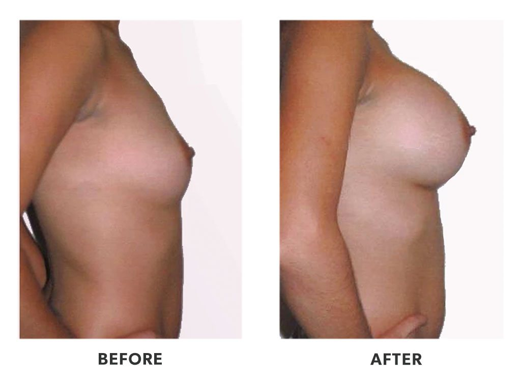 Before and after a breast augmentation in Tijuana Mexico