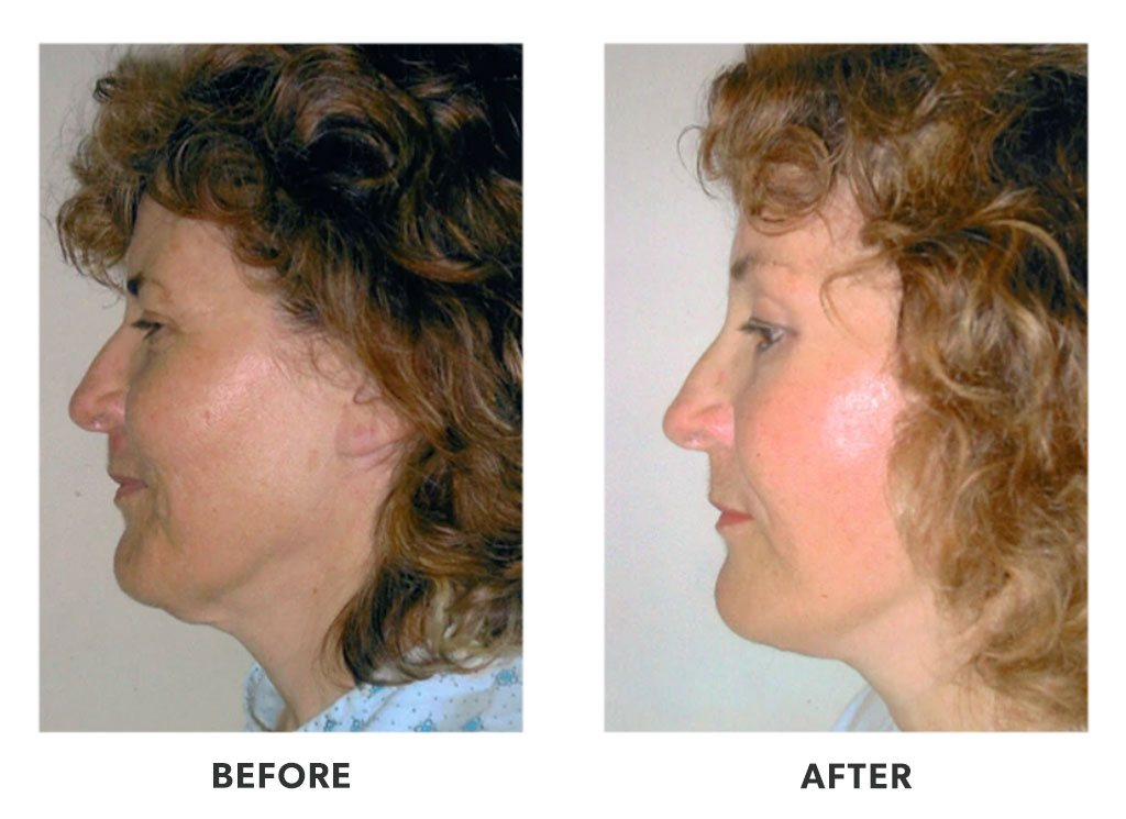 Before and after plastic surgery facelift