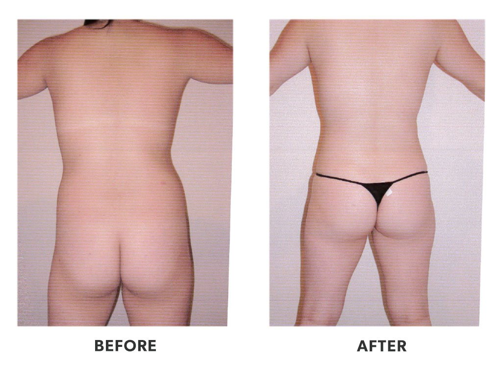 Before and after a liposuction in Tijuana Mexico