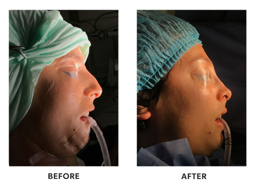 Before and after a rhinoplasty in Tijuana Mexico
