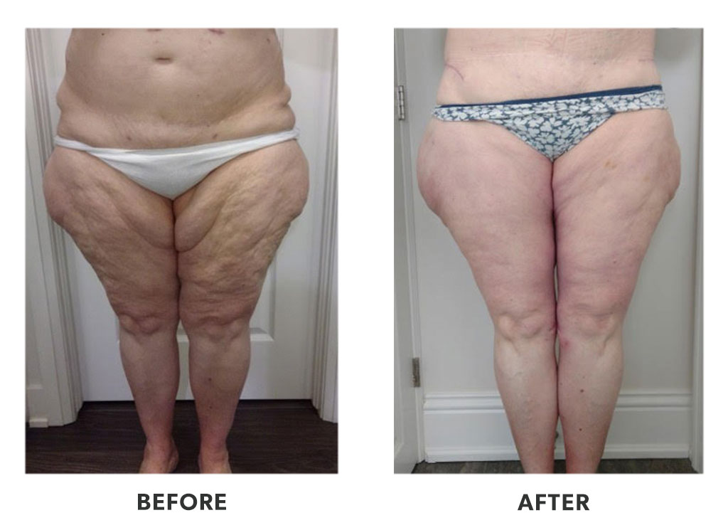 Before and after a thigh lift in Tijuana Mexico