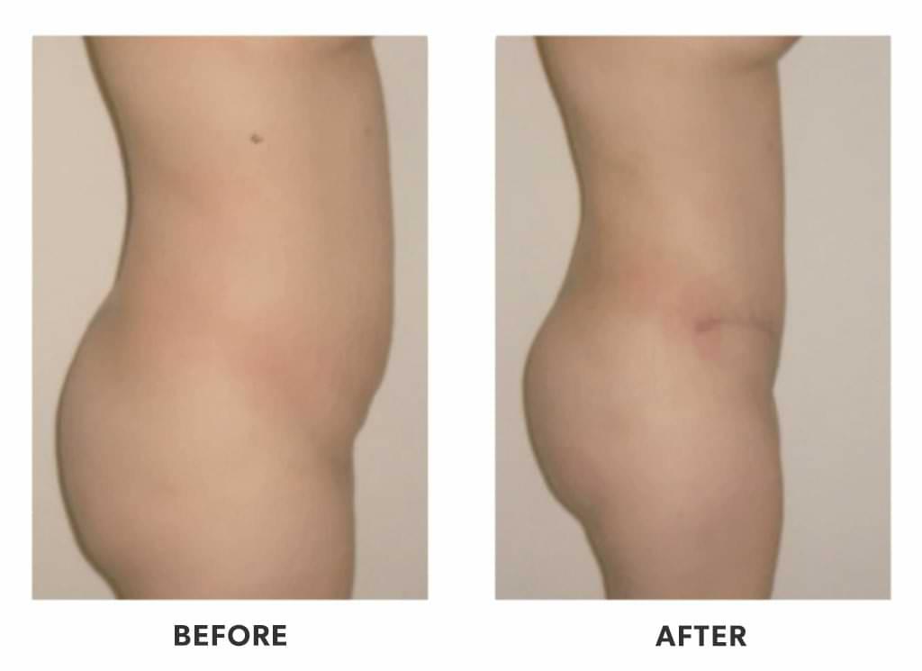 Lipoinjection patient after a Brazilian butt lift